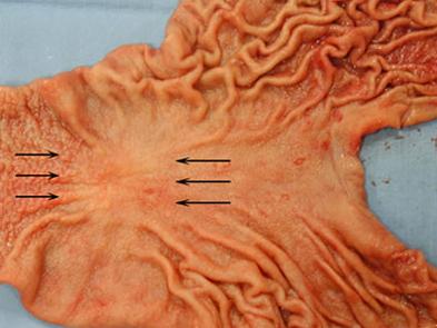早期胃癌の摘出標本像