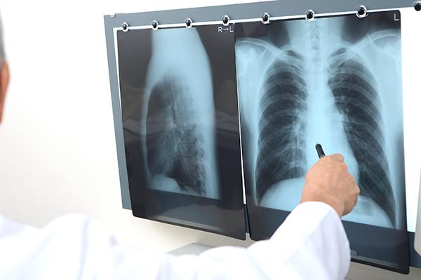 手術をうけるための術前検査