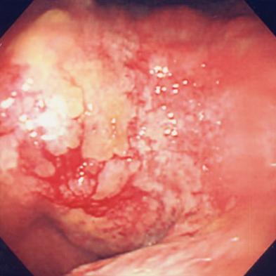 進行胃癌の内視鏡像